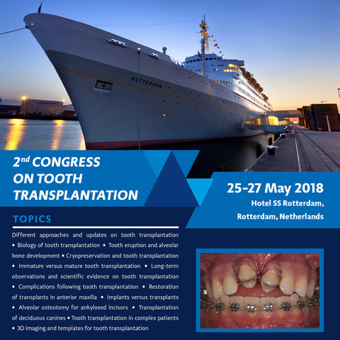 rotterdam_toothtransplantation 2.jpeg